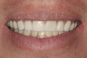Smile after teeth whitening procedure