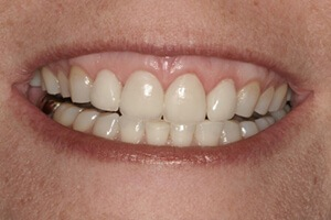 Patient 2 after teeth whitening