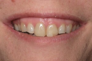 Patient 2 before teeth whitening