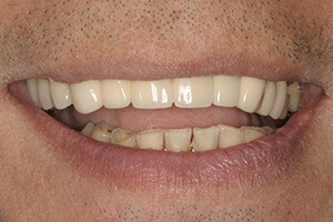 Smile with new porcelain veneers