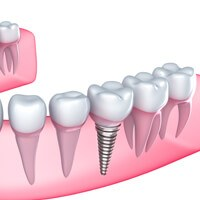 Graphic representation of a dental implant