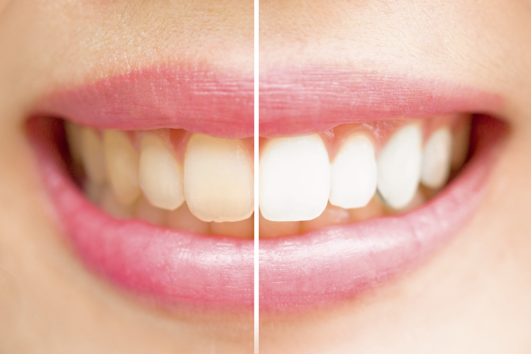 Learn more about teeth whitening in Midwest City.