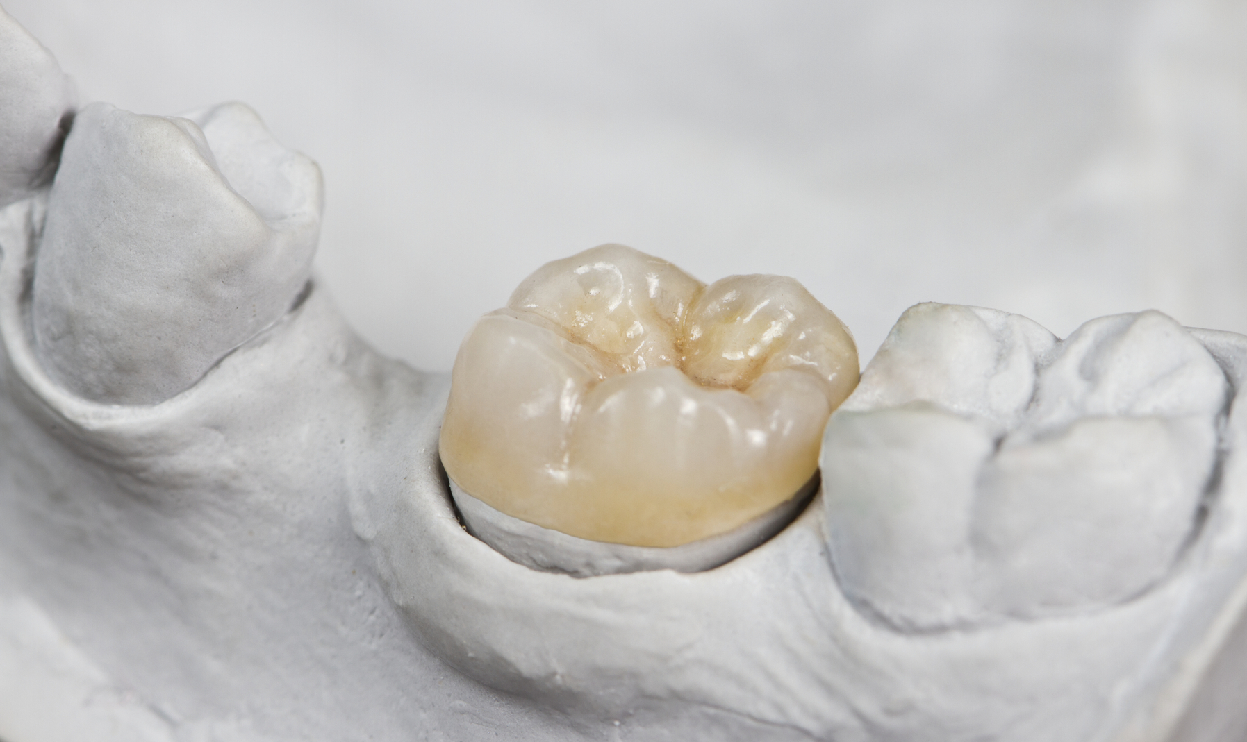 What can my Midwest City Dentist do about my broken tooth?