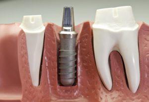 Model for titanium dental implants